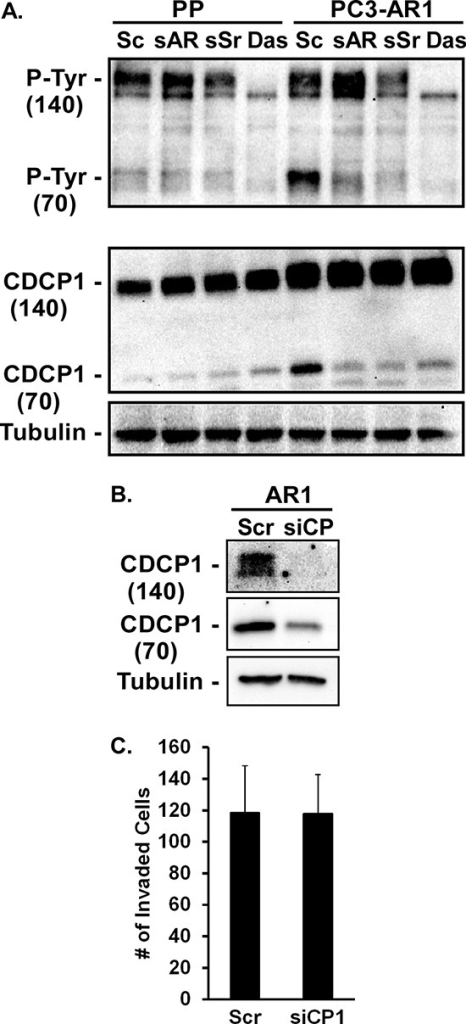 CDCP1 activity is regulated by AR and Src(A) PC3-Puro (PP) or PC3-AR cells were treated with scrambled siRNA (Sc), AR- or Src-specific siRNA (sAR, sSr), or 10 nM dasatinib for 24 hours. Tyrosine phosphorylation and expression of full length (140kDa) and cleaved (70kDa) CDCP1 from immunoprecipitates were measured by immunoblotting with anti-phosphotyrosine antibody or CDCP1 antibody respectively. (B, C) PC3-AR cells were treated with scrambled siRNA (Scr) or CDCP1-specific siRNA (siCP1). (B) CDCP1 expression was measured by immunoblotting and (C) Matrigel invasion was quantified.