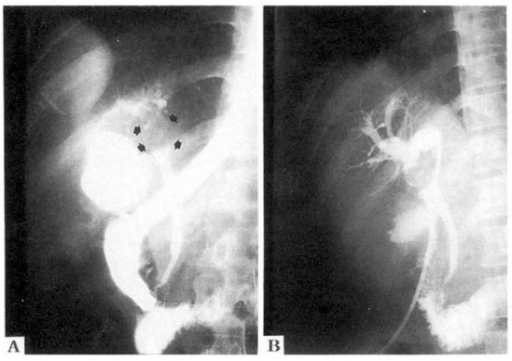 Endoscopic retrograde cholangiography (A) revealed a 3×2 cm sized, oval shaped, smooth surfaced filling defect (arrows) at the upper common hepatic duct including the porta hepatis. Note bulging of the upper common hepatic duct and the bulged and dilatation of the intrahepatic ducts. On percutaneous transhepatic cholangiography (B), the mass appeared somewhat lobulated and had shallow grooves on the surface.