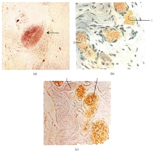 Superficial primo-node. (a) Feulgen stain. Sinus of the superficial primo-node (arrow) (×160). (b) Hillarp-Hokfelt stain. 1: chromaffin cell, 2: blood vessel. (c) Sevki stain; 1: chromaffin cell; 2: blood vessel [7].