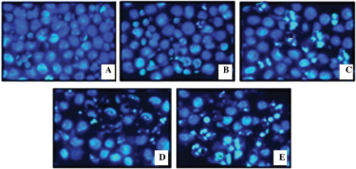 Morphological analyses using 4′,6-diamidino-2-phenylindole nuclear staining (magnification, ×400). MiapaCa-2 human pancreatic cancer cells were treated (A) without and with polyphenol-rich extract of Salvia chinensis at concentrations of (B) 20 µg/ml, (C) 40 µg/ml, (D) 60 µg/ml and (E) 80 µg/ml, for 48 h. Changes in nuclear morphology can be observed with increasing concentration.