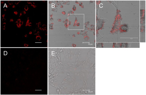 β2-m amyloid fibrils adhere to the cell surfaces.HIG-82 cells incubated with Ham's F12 medium containing 100 μg/ml β2-m fibrils (A-C) or vehicle buffer (D, E) for 6 hrs were stained with Congo red and observed with the confocal laser microscope as described in Materials and Methods. (B) and (E) are representative superimposed images on individual bright field micrographs. (C) A higher magnification of the box in (B). Images attached on the right and bottom are those of vertical sections on the lines intersecting at right angles. (A-C) When HIG-82 cells were incubated with 100 μg/ml amyloid fibrils for 6 hrs, they were firmly covered with amyloid fibrils. The scale bars are 50 μm long.