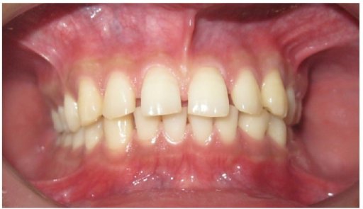 IOTN-AC Grade 5–7: borderline/moderate need for orthodontic treatment.