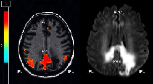 Resting state functional MRI (with central seed placed in the precuneus, PRE). IPL and ACC denote inferior parietal lobe and anterior cingulate cortex, respectively. Images in neurological convention; red areas indicate connectivity between PRE and IPC/ACC >0.5 (Whitfield-Gabrieli and Nieto-Castanon 2012). Left multiband EPI-sequence (TR 300 ms, TE 30 ms, 32 contiguous slices, matrix size 64 × 64, FoV 1380 mm); right diffusion weighted imaging sequence (b = 1000, TE 3500 ms, TE 89 ms, matrix size 128 × 128, FoV 230 mm)