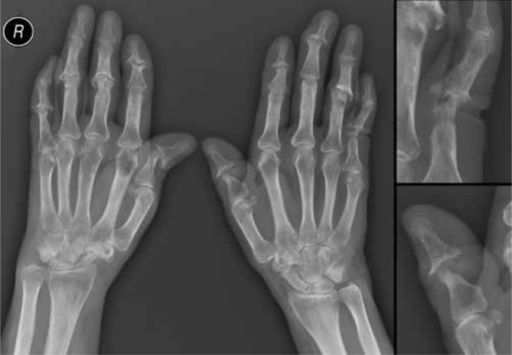 X-ray of the hands of the 53 y.o. female patient with PsA and erosive osteoarthritis, on the left – AP, on the right – PIP joint of the 5th left finger and IP joint of the left thumb enlarged: soft tissue swelling of the ulnar side of the left wrist, malalignment of the DIP joint of the 2nd finger of the right and 3rd finger of the left hand, subluxation of the IP joint of the right thumb and left hand's PIP 4 joint, joint space narrowing in a few interphalangeal joints and in both wrist regions, with concomitant destructive changes and decreased distance between articular surface of the distal radius and the base of the 3rd metacarpal on the right side, gross and juxtaarticular osteoporosis, destructive changes in a few PIP and DIP joints (gull-wing appearance, erosive osteoarthritis), osteolytic and erosive lesions (fluffy appearance in the course of PsA) in PIP joint of the 5th left finger and IP joint of the left thumb, with proximal phalangeal shortening (telescoping of finger), degenerative cyst in the head of the proximal phalanx of the 4th left finger, erosion on the lateral side of the base of the proximal phalanx of the 2nd right finger
