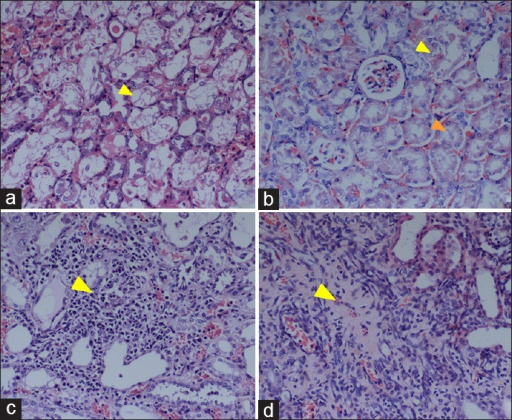 Serial pathological changes of the renal parenchyma in rats after CP administration (H and E, ×200). (a) At the 2nd day after CP injection, the epitheliums of renal tubules showed obviously cell swelling; (b) At the 6th day, cell turbidity (yellow arrow) and renal tubular mold could be observed (orange arrow); (c) At the 8th day, inflammation cells infiltrated in renal interstitium (arrow) resulting in cellularity increasing; (d) At the 4th week, massive fibrotic collagen (arrow) within broadened renal interstitial space was demonstrated together with tubular atrophy. CP: Cisplatin.