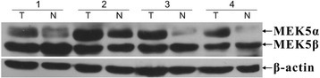Western blot analysis of MEK5 protein expression. Western blot analysis of MEK5 proteins expressed in eight pairs represents colorectal tumor tissues (T) and their matched adjacent non tumor tissues (N). Expression level was normalized with β-actin