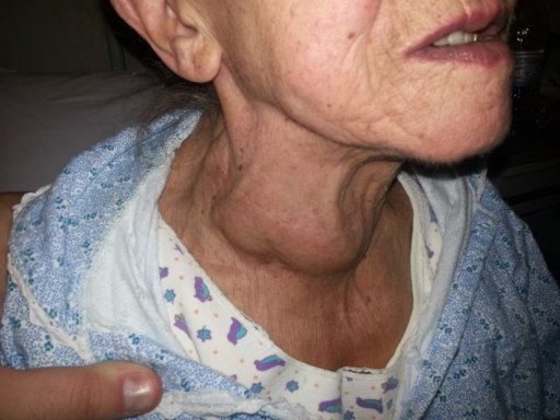 a large euthyroid multinodular goiter was evident in open i