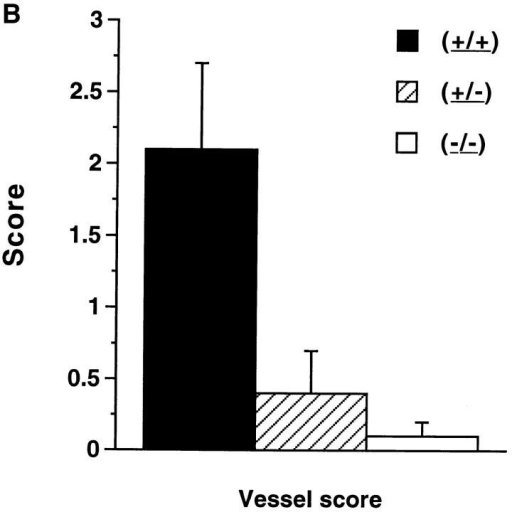 (A and B) Pathologic features of NOS2-modified MRL–lpr/lpr mice. 20-wk-old mice were examined. The bars show the mean and one standard deviation for the designated groups for renal and joint scores (A), and vessel scores (B).