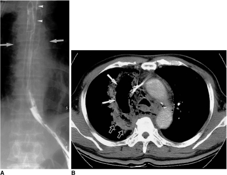 Spontaneous esophageal rupture in a 58-year-old man after heavy alcohol consumption.A. Esophagogram shows no evidence of contrast medium leakage, though mediastinal widening (arrows) is apparent. A nasogastric tube (arrowheads) was inserted.B. Mediastinal window of enhanced (7-mm collimation) CT scan obtained at the level of the aortic arch demonstrates widening of the right superior mediastinum (arrows), and extraluminal air. Also note that parenchymal consolidation (open arrows), probably due to passive atelectasis associated with mediastinal widening, has occurred in the right upper lobe.