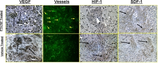 Immunohistochemistry of PTK787 and vehicle treated tumor showing expression of VEGF, HIF-1α, SDF-1 and vessel morphology.Expression of vascular endothelial growth factor (VEGF) (dark brown colored) at different parts of the PTK787 treated and vehicle treated tumors. There were no differences observed in the expression of VEGF on immunohistochemistry at different parts of the tumors treated with either PTK787 or vehicle. However, delineation of vessels using FITC tagged tomato lectin indicated higher number of dilated vessels at the tumor periphery in rats that received PTK787 treatment. These dilated vessels may be indicative of increased permeability, fPV and signal intensity changes in PTK787 treated tumors (see Figures 1 and 2). Increased permeability may also be due to increased VEGF expression. HIF-1α expression was mostly seen in the central part of the vehicle treated tumors (arrows), however, SDF-1 expressions were observed both in PTK787 and vehicle treated tumors (arrows).