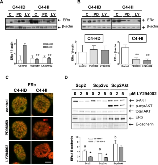AKT regulates ERα protein expression.A. ERα levels determined by western blot are reduced in C4-HI tumors treated with PD98059 or LY294002 administrated as indicated in Figure 1. However, ERα levels are more variable between tumors and not regulated by either inhibitor in C4-HD tumor samples. Top. Two representative samples of a total of six are shown in the gel. Bottom. Quantification of ERα relative to β-actin (used as a loading control) levels. n = 6 for each treatment; **:p<0.01 vs. control. B. A similar pattern of regulation of ERα protein is observed in primary cells cultured on top of Matrigel and incubated for 48 hrs with 10 µM of either of the inhibitors. Top. Two representative samples of a total of six of each group are shown in two independent gels. Bottom. Quantificaton of ERα relative to β-actin in each cell type. n = 6 for each treatment; **p<0.01 vs. control. C. Representative confocal images showing ERα determined by immunofluoresence (green). Lower levels of the protein are seen in PD98059-treated and in LY294002-treated C4-HI cells growing on Matrigel, whereas similar levels of ERα are seen in C4-HD treated and un-treated cells. Nuclei were stained red with propidium iodide. Scale bar: 30 µm. D. Top. A representative sample for each treatment is shown in a western blot. Scp2, a mouse mammary cell line, transfected with a constitutively active form of AKT1, myristoylated AKT1-Δ4-129 (Scp2Akt), displays in the same gel AKT with a typical molecular weight of 59 kDa and the myristoylated deleted variant of AKT1 (p-myrAKT) with a molecular weight of 45 kDa. The antibody used to detect total AKT recognizes only wild type AKT. E-cadherin was used as a loading control for Scp2 cells. Scp2Akt cells exhibit higher levels of ERα than Scp2 cells transfected with the vector control (vc) or Scp2 control cells. In Scp2 and Scp2vc cells, but not in Scp2Akt cells, 2 and 5 µM LY294002 downregulate p-AKT and ERα levels, whereas total AKT levels remains invariable. Bottom. Quantification of ERα relative to E-cadherin levels. n = 4 for each treatment; a,b p<0.05 Scp2Akt vs. Scp2 and Scp2vc; *p<0.05 LY294002 vs. control.