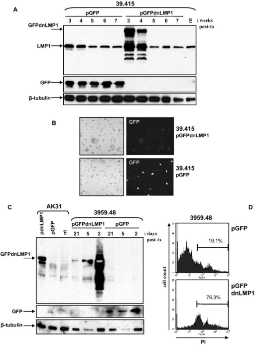GFPdnLMP1 expression is lost from EμLMP1 transgenic B-cell lymphoma cultures. Transgenic EμLMP1 cell lines 39.415 and 3959.48, along with an EBV negative Akata cell line sub clone (AK31), transfected with pGFP or pGFPdnLMP1 were assayed for transfectant expression. (A) Protein extract from 5 × 105 39.415 transfected cells (and non-transfected control: nt) were examined by western blotting sequentially using anti-LMP1 (top panel), α-GFP (middle) and α-beta-tubulin (bottom), as indicated. Cell aliquots were collected after completion of selection at 3 weeks post transfection (post-tx) and then at weekly intervals (maintaining G418 selective pressure). (B) Bright field (left panel) and green fluorescence (right panel) visualized in pGFPdnLMP1 (top panel) or pGFP (bottom panel) transfected 39.415 cells at 3 weeks post transfection. (C) 40 μg of protein extract from 3959.48 and control AK31 transfected cells (and non-transfected control: nt) were examined by western blotting sequentially using anti-LMP1 (top panel), α-GFP (middle) and α-beta-tubulin (bottom), as indicated. Cell aliquots were collected at 2, 5 and 21 days post transfection (post-tx) for 3959.48 cells and at 12 weeks post-tx for AK31 cells (all under G418 selection). (D) At four weeks post pGFP or pGFPdnLMP1 transfection 3959.48 cells stained with propidium iodide (viable cells exclude staining, apoptotic cells stain) were analysed by flow cytometry, gating on GFP positive fluorescent cells only. Histograms show y axis (cell counts) and x axis (FL2-H, PI staining). The percentage of PI positive cells (of the GFP positive population) is indicated.