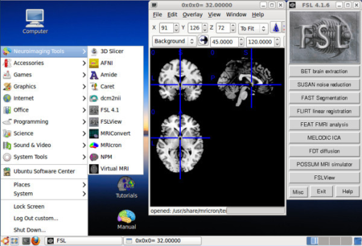 Screenshot of Lin4Neuro. User interface of Lin4Neuro was customized so that even Windows users can use this system intuitively. Shortcuts for tutorials and the manual are provided on the desktop, so users can reach the necessary resources easily with a few clicks.