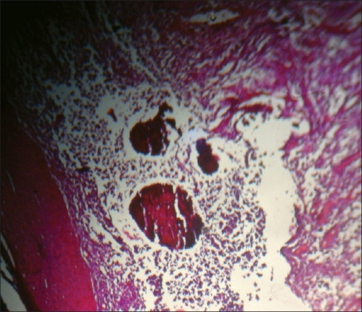 H and E histopathology with organized aggregates of filaments