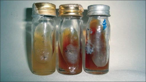 Madurella mycetomatis in Sabouraud's dextrose agar (two cultured specimens of patient) with leathery colony and brown pigment production compared with control