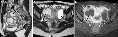 Pelvic inflammatory disease with pyosalpinx on MRI. This patient presented to the emergency department with pyrexia, lower abdominal pain and diarrhoea. a Sagittal T2 image of the pelvis demonstrates multiple fluid-filled cystic structures within the right adnexa (black arrows). The complex cyst is thick walled and there is adjacent fat stranding. b Axial T2 image demonstrates bilateral tubo-ovarian abcesses. c Axial T1 fat-saturated image following gadolinium administration demonstrates low signal intensity within the pus-filled cavities and marked enhancement of the inflammatory walls. The imaging appearances may overlap with ovarian malignancy but the clinical presentation is of sepsis