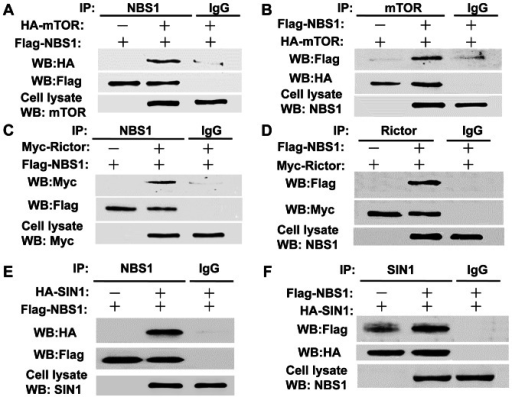 Interaction between NBS1 and the mTOR/Rictor/SIN1 complex.A & B. Co-immunoprecipitation assays showed the interaction between NBS1 and mTOR in 293T cells overexpressing both proteins. C & D. Co-immunoprecipitation assays showed the interaction between NBS1 and Rictor in 293T cells overexpressing both proteins. E & F. Co-immunoprecipitation assays showed the interaction between NBS1 and SIN1β in 293T cells overexpressing both proteins.