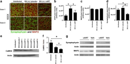 Antiretroviral drugs induce neuronal damage in vivo. a–d Formalin-fixed, paraffin-embedded tissue sections from hippocampus of pig-tailed macaques that were either uninfected (n = 6), SIV infected but not cART treated (n = 7), or SIV infected and treated with cART (tenofovir, atazanavir, saquinavir, and L-870812a; n = 4) were prepared for immunofluorescent analysis and were triple labeled for MAP2 (red), synaptophysin (green), and GFAP. Sections were visualized by laser confocal microscopy and images were quantified for MAP2, synaptophysin and GFAP expression. a Representative composite images of two cases per group which were stained with MAP2 and synaptophysin are shown. Scale bar = 30 μm. b Quantification shows the resolution of GFAP immunoreactivity in SIV(+)/cART group, compared with SIV(+)/placebo group (one-way ANOVA, *p < 0.05). No changes were observed in MAP2 expression between groups (c), but there were statistically significant decreases in synaptophysin immunoreactivity (d) in SIV(+)/cART group, as compared with SIV(+)/untreated and uninfected groups (one-way ANOVA, *p < 0.05, ns not significant). e, f Fresh-frozen tissue sections from the frontal cortex of pig-tailed macaques that were either uninfected (n = 3), SIV infected but not cART treated (n = 6), or SIV infected and cART treated (n = 6) were used for standard protein extraction and subsequent immunoblotting for the expression of CaMKII. Actin was used as a loading control. A representative immunoblot is shown. Quantification shows statistically significant decreases in CaMKII in the cART-treated group, as compared with the uninfected group or the SIV(+)/untreated group (one-way ANOVA, *p < 0.05). g Whole cell lysates prepared from hippocampus of rats treated for 7 days with AZT/Rit/Saq (n = 4) or vehicle (n = 2) were immunoblotted for synaptophysin and MAP2. A band from the coomassie blue staining is included to control for equal loading and protein degradation