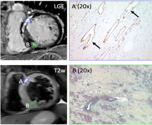 Correlation of late gadolinium enhancement and T2-weighted (T2) imaging findings and histopathology in a 52 yo male undergoing cardiac transplantation. Region of increased T2 signal [A] demonstrates large vascular channels embedded within dense fibrosis (arrows), staining positive for lymphatic endothelium (right panel). A reference region of fibrosis without abnormal T2 signal [B] demonstrates only fibrosis with scant fat deposits.