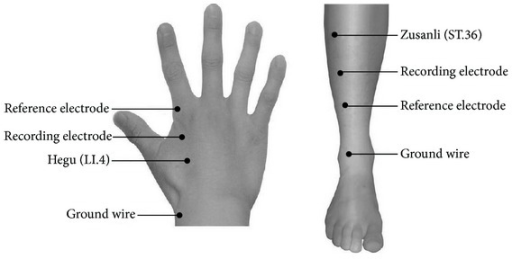 Acupoints schematic diagram. Acupuncture was performed using sterile disposable stainless steel needles at two acupuncture points on the right extremity in separate runs: ST.36 (traditionally known as the Zusanli acupoint) on the leg and LI.4 (traditionally, the Hegu acupoint) on the hand. The acupuncture point ST.36 is located in the tibialis anterior muscle, 4 fingerbreadths below the kneecap and 1 fingerbreadth lateral from the anterior crest of the tibia. The acupoint LI.4 is located in the dorsal surface of the web between the thumb and the index finger. Recording electrode and reference electrode are placed on the distal end of acupoints in the right limbs. Ground wires were placed on the dorsal surface to avoid electrical disturbance.