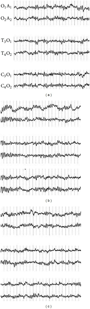 Change of electroencephalogram in Hegu acupoint following acupuncture before and after de qi. O-A, T-O, and C-O represent the electrodes placed for the different brain regions. We found that in different brain regions, the change of electroencephalogram before and after de qi was not evident.