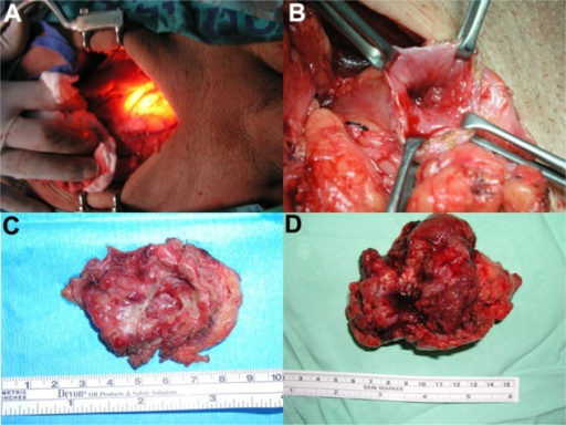 (A) An intraoperative view. A midline lapartomy was performed and the bladder isolated. The lights in the operating room were turned off. The surgeon pointed the cystoscope toward one of the poles of the planned ellipse around the tumor. The assistant marks this point with a cautery. (B) The marked incision was deepened, the bladder edge lifted with Allis clamps, and the tumor identified. (C) A removed specimen showing only a crater. (D) A removed specimen showing a bulky (pT3) tumor. This patient was operated on at the age of 54 years and is disease-free 85 months after surgery.