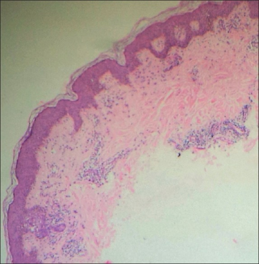 Low power view showing acrosyringium at left side of section, hyperplastic epidermis, perivascular lymphocytic infiltrate in dermis. H and E, ×40