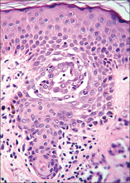 Medium power view showing acrosyringium with acantholysis and dyskeratosis affecting the acrosyringeal keratinocytes at the mid spinous level. H and E, ×100