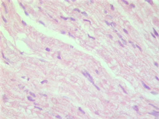 This H and E slide of the biopsied specimen is consistent with a peripheral nerve fiber.