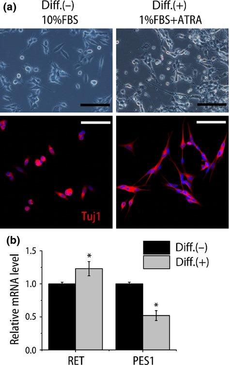 Induced differentiation attenuated PES1 expression in neuroblastoma cell line. (a) Phase contrast images (top panels) and confocal image of fluorescence immunostaining for β-tubulin (Tuj1) (red, bottom panels) of NB39 cells under normal culture conditions (10% FBS; Diff.(−)) and differentiation conditions (1% FBS + 1 μM all-trans retinoic acid [ATRA]; Diff.(+)). Hoechst 33258 was used to visualize nuclei. Scale bar = 100 μm. (b) Quantitative RT-PCR analysis of differentiation-related gene (RET) and PES1 expressions (n = 4). *P < 0.05 normal culture conditions versus differentiation conditions (Student's t-test).