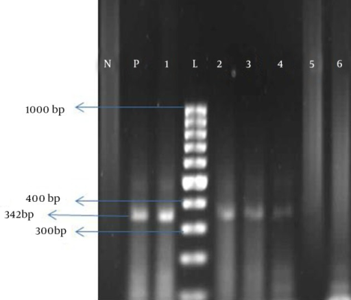 Polymerase Chain Reaction Products for Positive and Negative Samples on 1.7% Agarose GelP, positive control; N, negative control; L, 100 bp; 1-4, positive samples; 5-6, negative samples