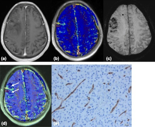Images(a-d) of a 26-year-old man with right frontal low-grade Oligodendroglioma. (a) Contrast-enhanced T1-weighted image shows fair enhancement of the tumor. (b) Ktrans map shows mild increased Ktrans values within the tumor, relative to the normal brain tissue. (c) Multiple dotlike ITSS are shown in the SWI. (d) Coregistered image of Ktrans and SWI shows that regions of the highest value of Ktrans does not correspond with areas of attenuated prominent ITSS(arrows) in the same segment. (e) Representative immunohistochemical staining(CD34, Original magnification,×200) shows rather abundant mirovessels with small VD.