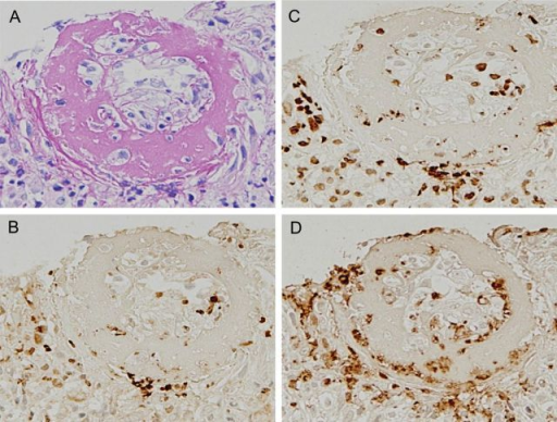 Immunomicrograph of fibrinoid necrosis of the interlobular artery with the early focal class of MPO-ANCA-associated glomerulonephritis. The view field of necrotizing interlobular artery is shown for the sections described in Figure 1. (A) Periodic acid-Schiff stain; (B) PAD4 stain; (C) citrullinated histone stain; (D) MPO stain. The signals appear concurrently with PAD4, citrullinated histones and MPO, distributed in fibrinoid necrosis of the interlobular artery. A–D: ×20.