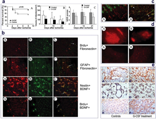 G-CSF-mediated neuroprotection in cerebral ischemia. (a-A) Survival rate of rats with cerebral ischemia treated with G-CSF and with saline as control, (a-B) Infarction volume and (a-C) Neurological Severity Score. (b) Double-labelled immunofluorescent staining of brain slices obtained from G-CSF-treated rats at day 7 after MCAO. Red images correspond to Brdu, GFAP or nestin and green images to fibronectin or BDNF.Yellow images reveal double-labelled positive cells. (c) G-CSF receptor expression in GFAP+ astrocytes in ischemic region (B), but not in non-ischemic region (A). Red images correspond to GFAP and green images to G-CSF receptor.Yellow images show double-labelled positive cells. (d) Area of cell death stained with PI (up) and number of bcl-2+ cells (down) at 7 days after hippocampal slice cultures in the absence (A) or presence (B) of G-CSF. (e) Expression of nestin, vWF and MAP-2 expression brain sections.The immunohistochemistry of nestin (A and B), vWF (C and D) and MAP-2 (E and F) are performed on brain slices obtained from G-CSF-treated rats and control rats at day 7 after MCAO.