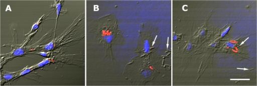 In vitro phagocytosis of E. coli cells by circulating hemocytes (LysoTracker Red-Hoechst 33258).(A) A group of control hyalinocytes, some of them showing small acidic granules. (B) Hemocytes exposed to E. coli; a phagocyte (upper left) showing a group of internalized red-labeled bacteria, while another phagocyte (lower right) shows a single internalized bacterium. Small acidic granules are not seen in these hemocytes, whether phagocytic or not. Bacteria which are free over and around hemocytes are not labeled (arrows). (C) A group of hemocytes, one of them showing several internalized bacteria in different degrees of digestion. Small acidic granules are not seen in these hyalinocytes. Non internalized bacteria are not labeled by LysoTracker Red (arrows). Scale bar represents 10 μm.