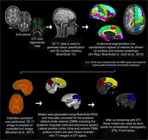 Summary of Tractography Methods.Probabilistic tractography comparison between groups was performed as summarized above [33, 87, 88].