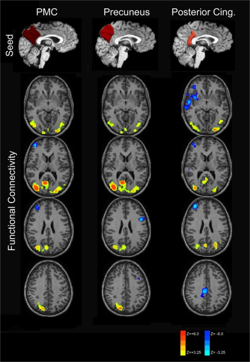 Subdivision of PMC functional connectivity into precuneus and posterior cingulate components.RS-fMRI analysis of the PMC demonstrates increased connectivity in the posterior default mode network for PMC and its components. Anti-correlation with the salience and central-executive networks was only observed with the posterior cingulate seed and not when seeding the precuneus, however.