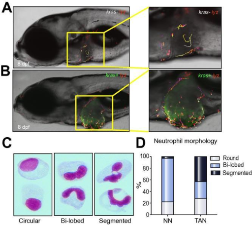 Differential behaviors of NNs and TANs. (A–B) Tracking of neutrophil movement within and surrounding the liver area in a kras−/lyz+ larva (A) and a kras+/lyz+ larva (B) respectively. Selected neutrophils were tracked based on one-hour time-lapse videos on 8 dpf larvae in Supplementary Videos 1 and 2. (C) Representative images of three distinct nuclear patterns after Giemsa staining: circular, bi-lobed and segmented nuclei. (D) Percentages of each nuclear pattern in NNs and TANs.