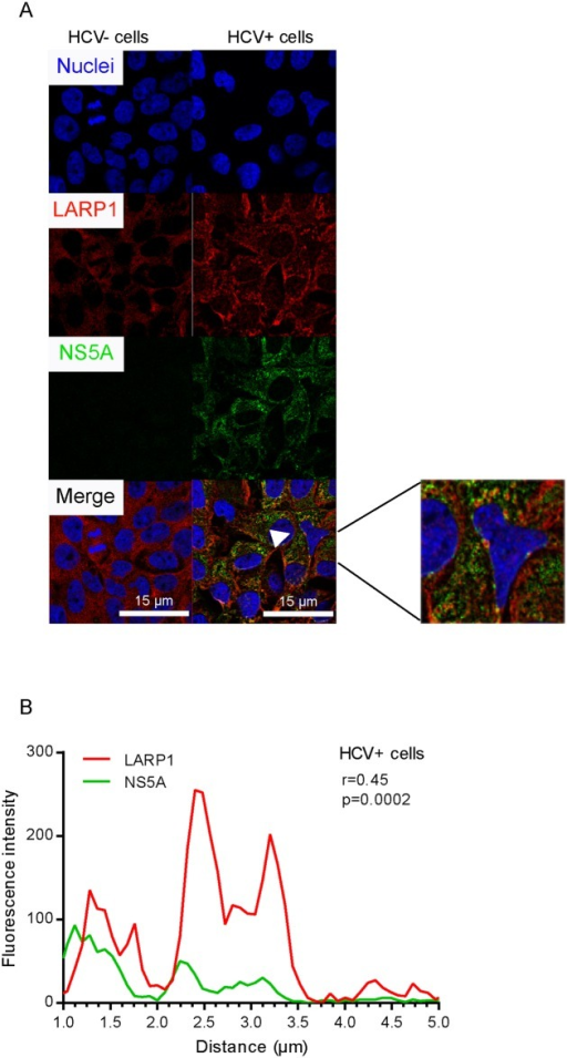 HCV NS5A colocalizes with LARP1 in infected Huh7.5 cells.A. Cells were infected by HCV over 4 d prior to fixation, NS5A and LARP1 double-staining, and confocal microscopy. Nuclei were counterstained with Hoechst 33342. LARP1 (red) and NS5A (green) were detected using Alexa-594 and Alexa-488, respectively. Overlays were generated by the ImageJ software. Solid arrow shows colocalization site. Bar = 15 μm. B. Statistical assessment of the colocalization of LARP1 and NS5A. Red (LARP1) and green (NS5A) fluorescence intensities were measured for each pixel along a 5-μm horizontal line centered around the arrow tip using the Plot Profile function of the ImageJ software. Spearman correlation coefficients for each couple of intensity values are shown. The underlying data for panels in this figure can be found in S1 Data.