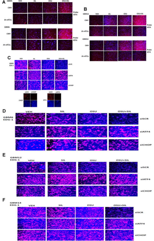 Increased expression of ATF4 after [OSU-03012 + sildenafil] treatment is eIF2α dependent and the drug-induced suppression of EDG-1 expression requires ATF4/CHOP signaling. A,B: GBM cells were transfected with empty vector CMV or to express dominant negative eIF2α. Twenty-four hours after transfection, cells were treated with vehicle, OSU-03012 (1 μM), sildenafil (2 μM), or the drugs in combination for 6 h. Cells were fixed and permeabilized and immunofluorescence performed to determine the levels of ATF4. C–F: GBM cells were transfected with a scrambled siRNA (siSCR) or siRNA molecules to knock down the expression of ATF4 or CHOP. Twenty-four hours after transfection, cells were treated with vehicle, OSU-03012 (1 μM), sildenafil (2 μM), or the drugs in combination for 6 h. Cells were fixed and permeabilized and immunofluorescence performed to determine the total cellular levels of S1PR1 (EDG-1).