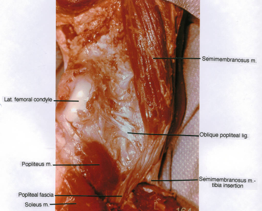 lateral femoral condyle; popliteus muscle; popliteal fascia; soleus muscle; semimembranosus muscle; oblique popliteal ligament; semimembranosus muscle; tibial insertion