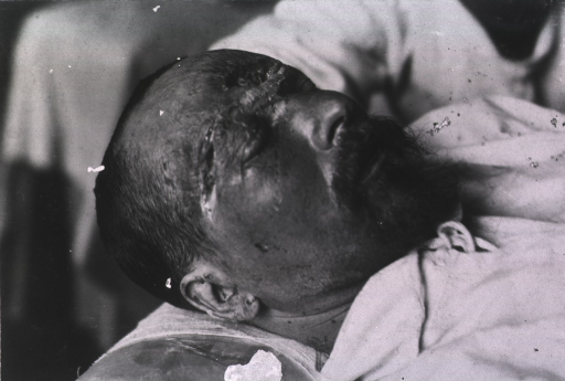 <p>View of a patient's open wound located on his forehead and temple area.</p>
