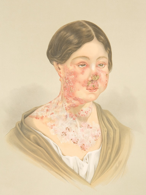 <p>Image of a lithograph from Hebra's Atlas, pt. 1, pl. 4, showing a picture of a woman with advanced lupus vulgaris on face, neck and upper part of chest.</p>