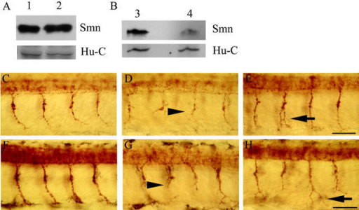 Motor axons/nerves are abnormal in embryos injected with 9 ng of smn MO. Western blot analysis of WT uninjected (lanes 1 and 3), control MO–injected (lane 2), and smn MO–injected (9 ng) (lane 4) embryos at 36 h. Hu-C, a neuronal marker, is shown as a loading control. Lateral views of whole-mount embryos labeled with znp1 mAb at 27 (C–E) and 36 h (F–H) in embryos injected with control MO (C and F) or smn MO (D, E, G, and H). Truncated motor axons/nerves (D and G; black arrowheads) and branched motor axons/nerves (E and H; black arrows) occur when Smn protein levels are further reduced. Bars: (C–E) 25 μm; (F–H) 30 μm.