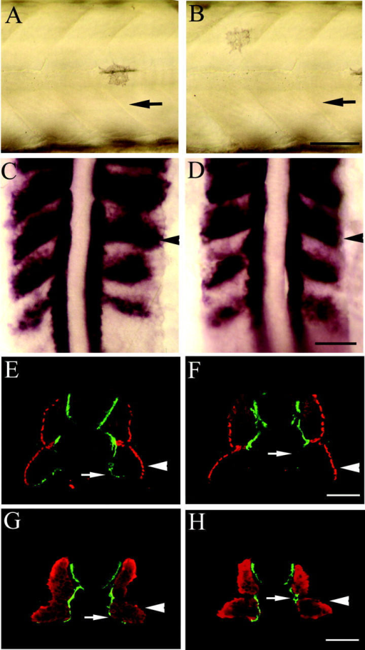 Muscle development is normal when Smn is decreased. Nomarski lateral views of mid-trunk muscle from 50-h gata2–GFP transgenic embryos injected with 9 ng of control MO (A; n = 20) or smn MO (B; n = 20) showing somitic boundaries (black arrows). Dorsal views of 22-h whole-mount in situ hybridization of myoD (purple; black arrowhead) in control MO–injected (C; n = 31) and smn MO–injected (D; n = 18) embryos. Cross section of 27-h znp1 (motor axon; arrows) and F59 (slow muscle; arrowheads) mAb–stained embryos injected with control MO (E; n = 40) or smn MO (F; n = 65). Cross section of 27-h znp1 (motor axon; arrows) and F310 (fast muscle; arrowheads) mAb–stained embryos injected with control MO (G; n = 20) or smn MO (H; n = 41). Bars: (A–D) 75 μm; (E–H) 30 μm.