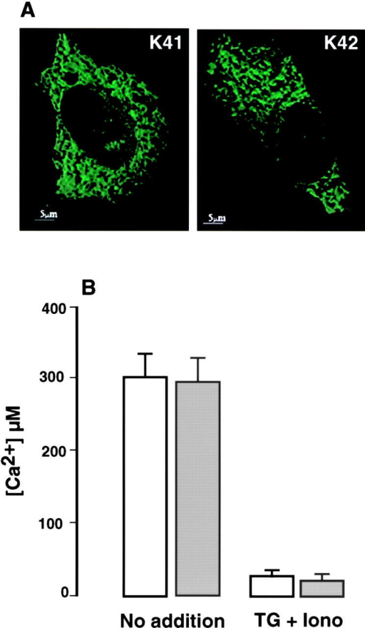 Free ER Ca2+ luminal concentration in K41 wild-type and K42 calreticulin-deficient cells. Cells were transiently transfected with YC4ER and the ratio fluorescence calibrated to [Ca2+]ER using calibration curves obtained in situ (Arnaudeau et al., 2001). (A) Intracellular distribution of ER-targeted cameleon in wild-type (K41) and calreticulin-deficient (K42) cells. (A) Single wavelength cameleon fluorescence (emission at 535 nm) imaging of transfected cells revealing reticular pattern reminiscent of the ER. (B) Free [Ca2+]ER in K41 wild-type (white bars) and K42 calreticulin-deficient (gray bars) cells was measured with ER-targeted cameleon as described under Materials and methods. TG, thapsigargin; iono, ionomycin. Data are derived from 15–22 independent experiments.
