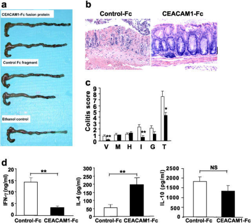 Effect of CEACAM1-Fc chimeric protein on the induction of oxazolone colitis. Macroscopic (a) and histologic pictures (b; ×100) of colon isolated from mice induced to develop oxazolone colitis treated with CEACAM1-Fc or a control-Fc fragment. (c) Colitis scores of colon-induced oxazolone colitis treated with CEACAM1-Fc (solid bar) or a control-Fc fragment (open bar). Mice treated with CEACAM1-Fc exhibited significant reduction in colitis scores (*, P < 0.005; **, P < 0.01). V, hyper-vascularization; M, presence of mononuclear cells; H, epithelial cell hyperplasia; I, epithelial injury; G, presence of granulocytes; T, total score. (d) Th1 and Th2 cytokine production from LPLs was analyzed by ELISA of mice with oxazolone colitis treated either with CEACAM1-Fc (solid bars) or control-Fc fragment (open bars). Suppression of IFN-γ was significant (**, P < 0.01). Data are shown as mean values ± SEM from four independent experiments.