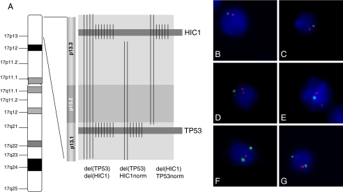 Chromosome 17p deletions in MCL. Whole arm deletion of chromosome 17p, including TP53 and HIC1, in 11/59 MCL (a), as indicated by fluorescence in situ hybridization using the TP53-specific probe RP11-199F11 (green) and the HIC1-specific probe RP11-667K14 (red) (b–c). Partial deletion of chromosome band 17p13.1 to 17p13.3 including only the TP53-locus in 7 out of 59 MCL (a), as seen by loss of one green signal (TP53) in contrast to two HIC1-signals (red) (d–e). Deletion of chromosomal band 17p13.3, including HIC1 without loss of TP53 in 7/59 MCL (a), as indicated by one HIC1-signal (red) instead of two TP53-signals (green; f–g)
