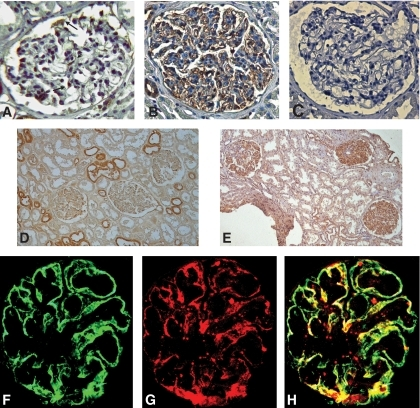 CCR2 staining of human glomeruli from control subjects and patients with diabetic nephropathy. CCR2 protein expression was evaluated in human glomeruli from control subjects (A and D) and diabetic patients with overt nephropathy (B and E) by immunohistochemistry as described in research design and methods. C: Nonspecific staining was determined by preabsorbing the anti-CCR2 antibody with a 10-fold excess of control peptide. F: Double immunofluorescence for CCR2 (F) and (G) the podocyte marker synaptopodin performed on the diabetic glomeruli showed colocalisation of the positive staining, as demonstrated by merging (H). Magnification ×400 (×80 D and E). Arrows and arrowhead indicate podocytes and mesangial cells, respectively. (A high-quality digital representation of this figure is available in the online issue.)