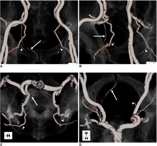 Imaging findings are shown for 69-year-old male with lateral accessory pudendal artery arising from inferior vesical artery. Right lateral accessory pudendal artery (arrows) with proximal portion of bilateral internal pudendal artery (arrowheads) on transparent surrounding anatomy is readily recognized over right pelvic side wall on 3D postprocessing images (A-D) (top, anteroposterior and right anterooblique view; bottom, craniocaudal view).